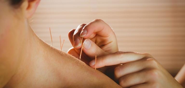 Akupunktur zur Gewichtsreduktion in Los Angeles, Kalifornien